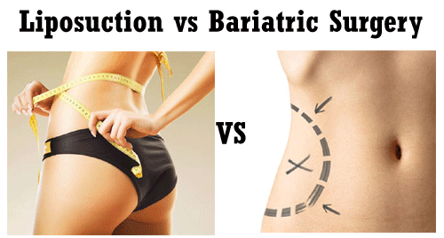 Bariatric Surgery vs Liposuction for Weight Loss