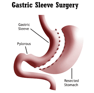 Gastric Sleeve Surgery for Weight Loss
